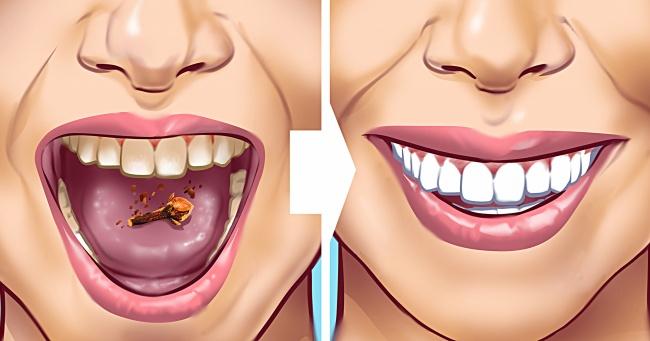 Tartar Lekelerini Dişlerinizden Temizlemenin 10 Yolu